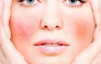 6 způsobů, jak na drobné žilky v obličeji